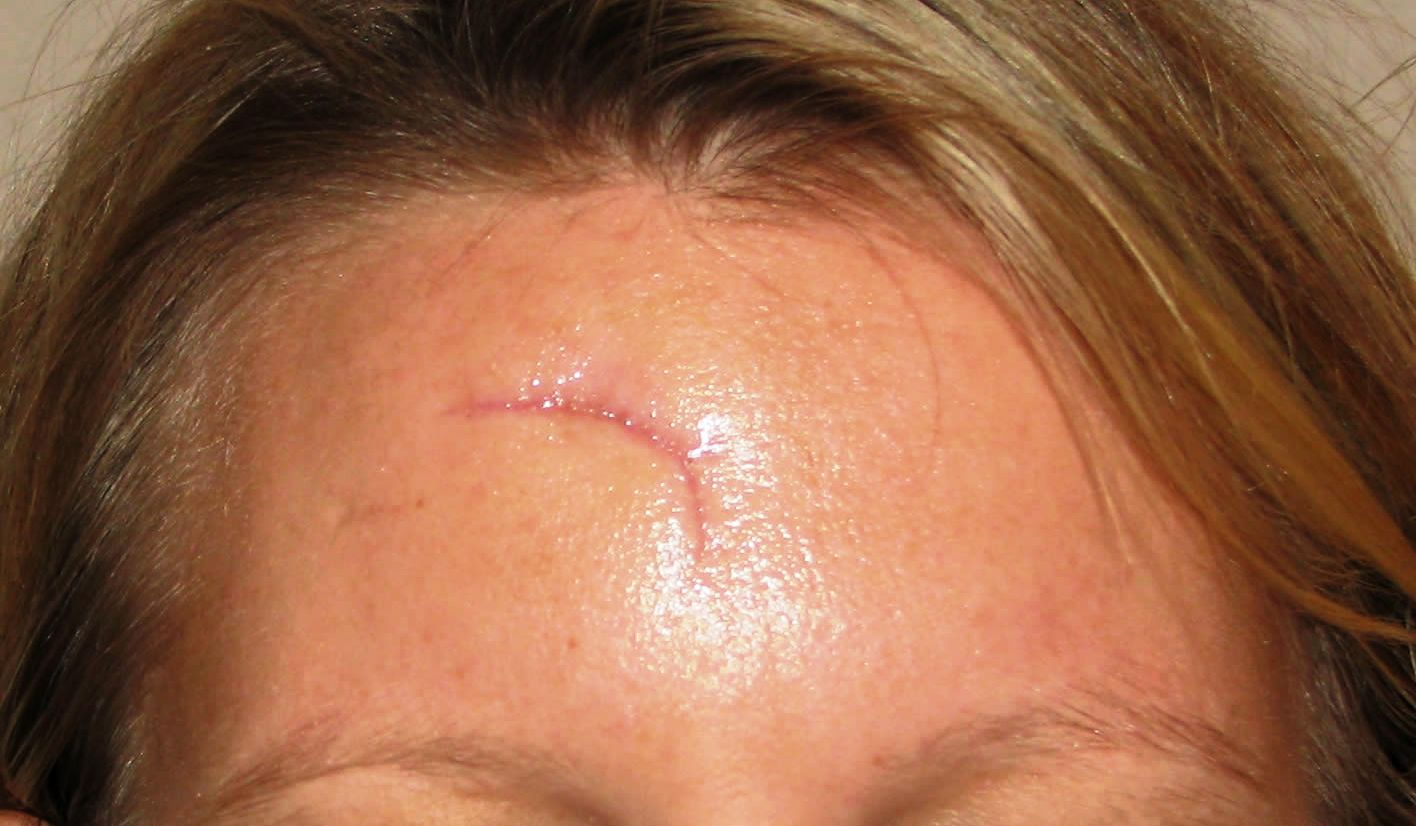 how to clean incision on forehead from mole removal