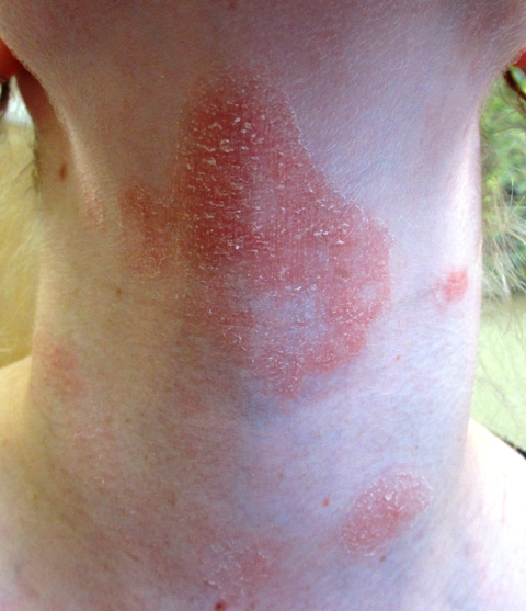 Picture of Allergic Contact Dermatitis - WebMD