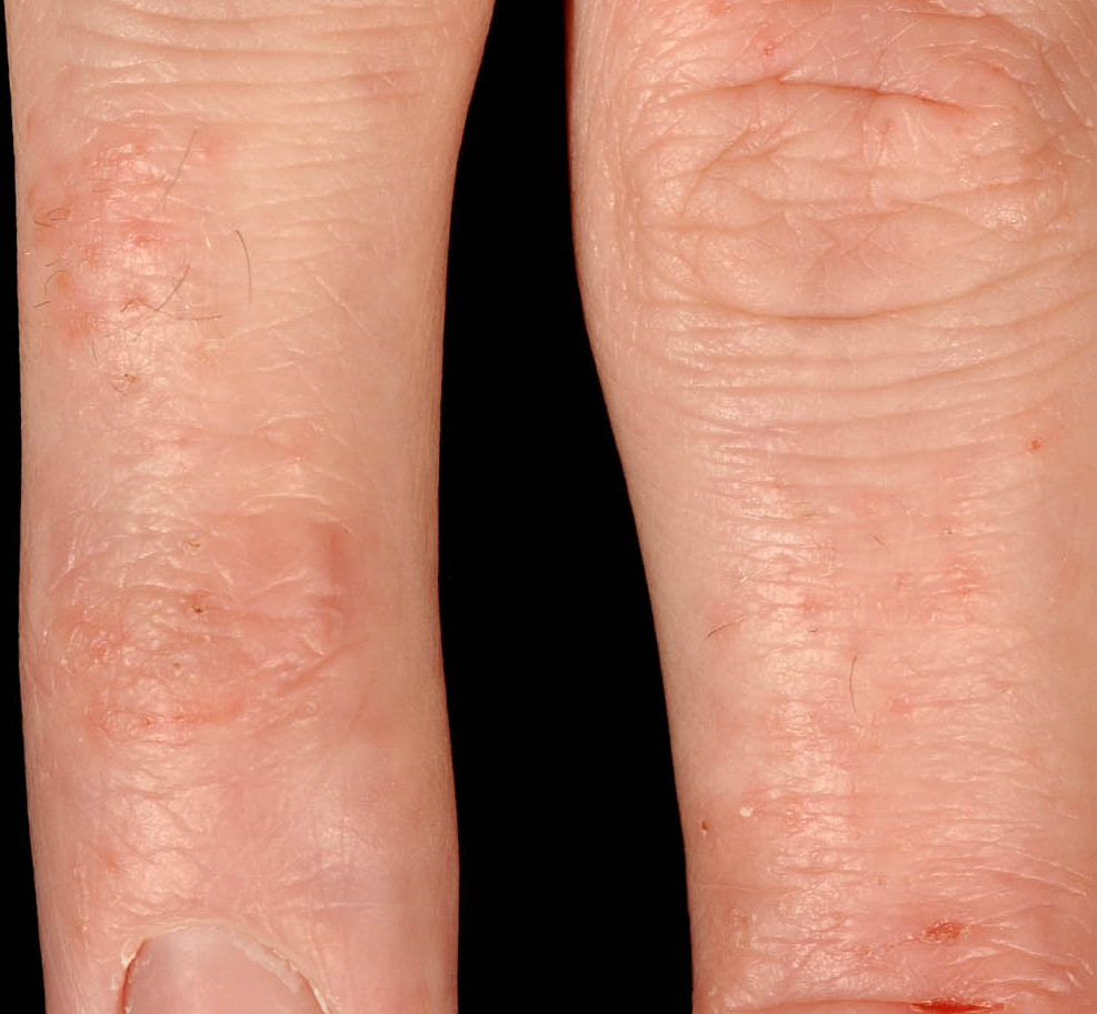 Pompholyx eczema: A common cause of Itchy Hands and Feet