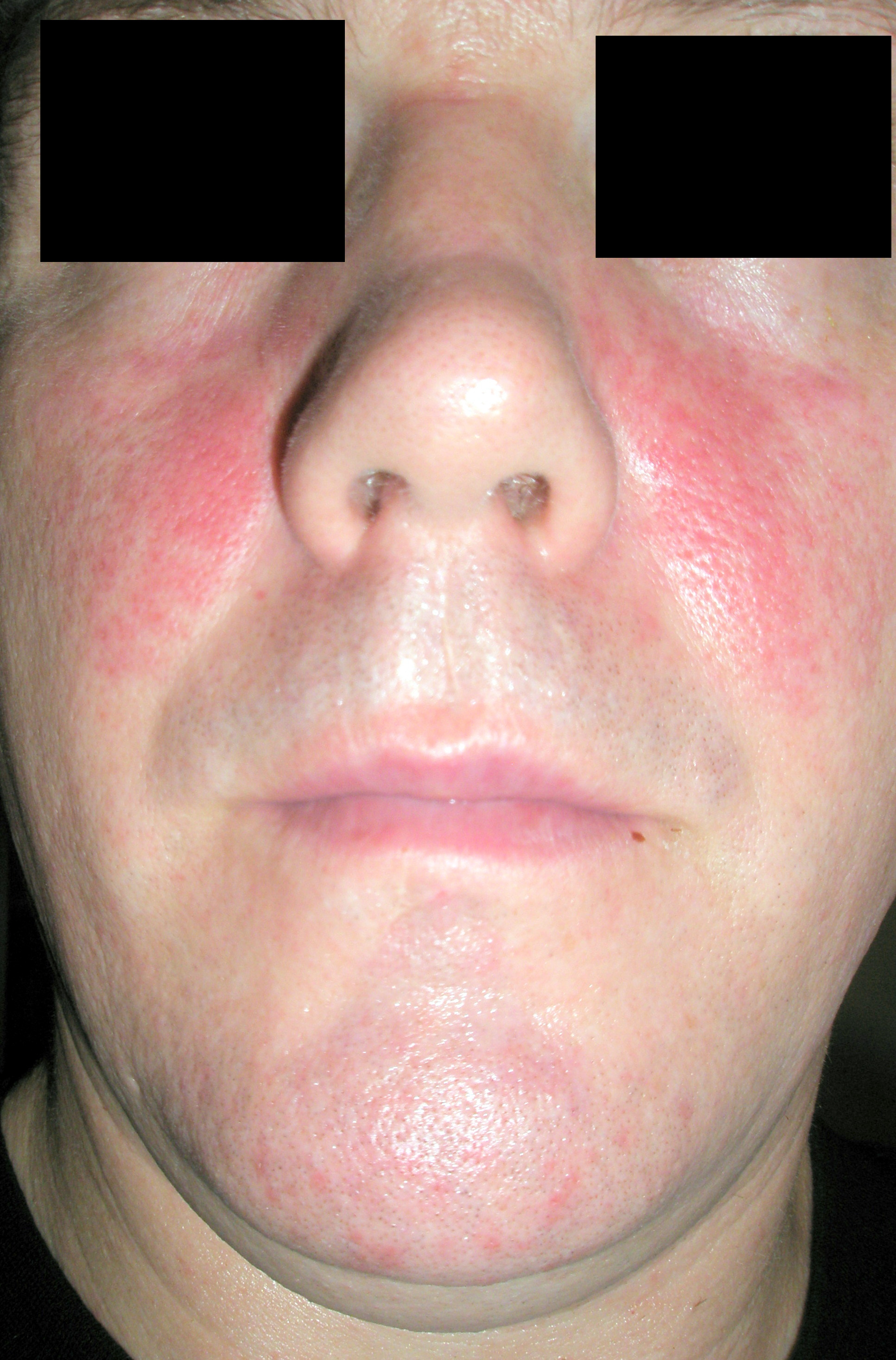 Red cheeks are often caused by rosacea