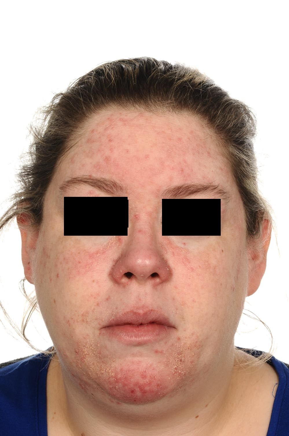Red spots on the face -rosacea