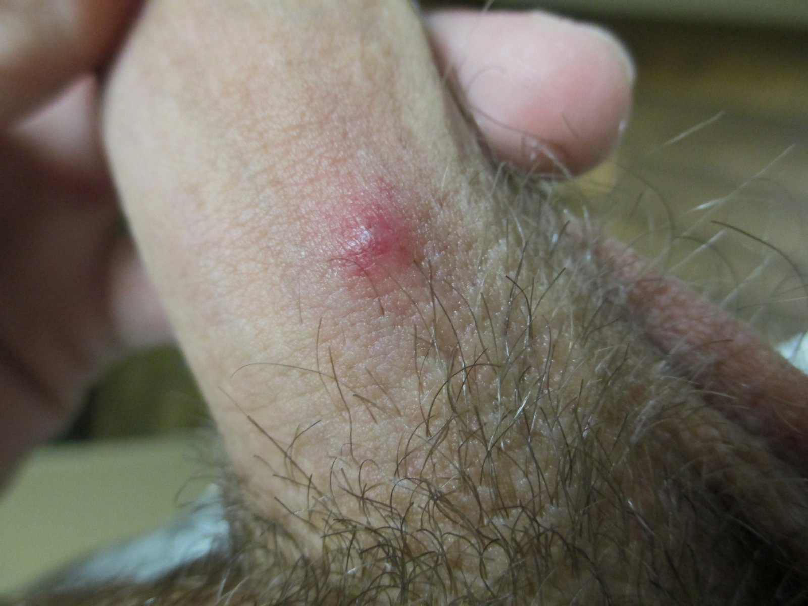 Spots on penis can be a sign of herpes